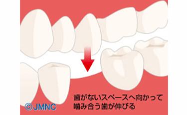 抜けてしまった歯のスペースにかみ合う歯が伸びてくる